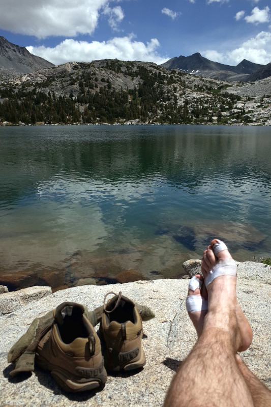 Justin's bandaged feet in front of Bernice Lake in Yosemite National Park